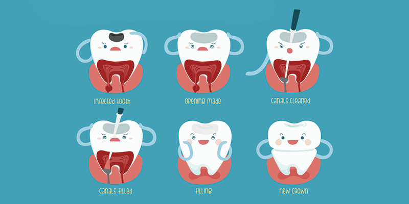Endodontics (Root Canal Treatment)