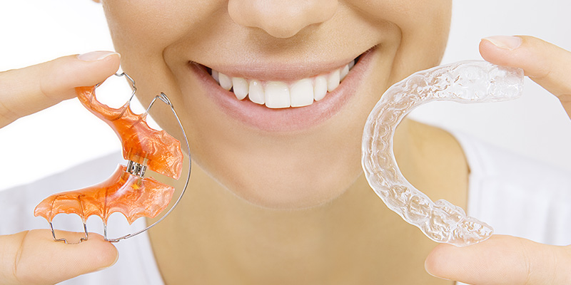 Orthodontic Treatment Methods